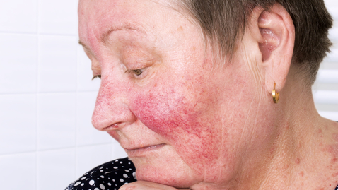 Thumbnail for entry Rosacea Signs and Symptoms