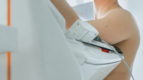 Small Breast Sizes Are Also at Risk of Breast Cancer