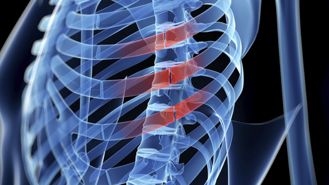 Fractured Ribs Still Painful After 2 Months? You May Need Surgery