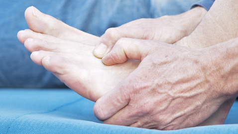 Thumbnail for entry What is Gout and Am I At Risk?