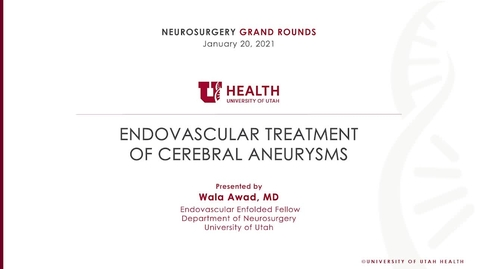 Thumbnail for entry Endovascular Treatment of Cerebral Aneurysms