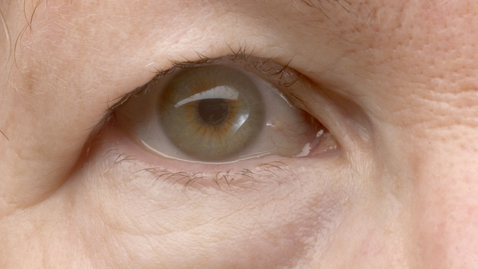 Thumbnail for entry How to Fix Droopy Eyelids?