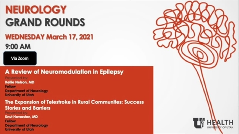 """Thumbnail for entry """"A Review of Neuromodulation in Epilepsy"""" & """" The Expansion of Telestroke in Rural Communities: Success Stories and Barriers"""""""
