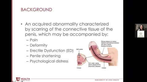 Thumbnail for entry Men's Health Seminar - Erectile Dysfunction & Peyronie's Disease - January 25, 2021